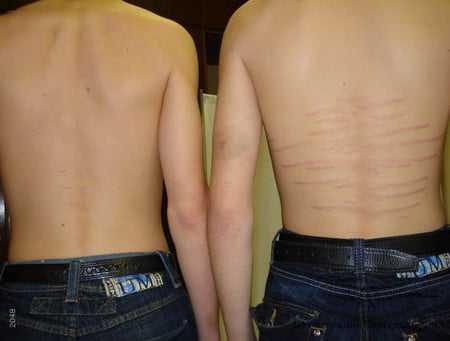 Растяжки на спине у подростков