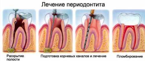 Скопление гнойного экссудата вокруг корня зуба приведет к ощущению, что зуб как бы вырос и стал длиннее других, да еще и двигается