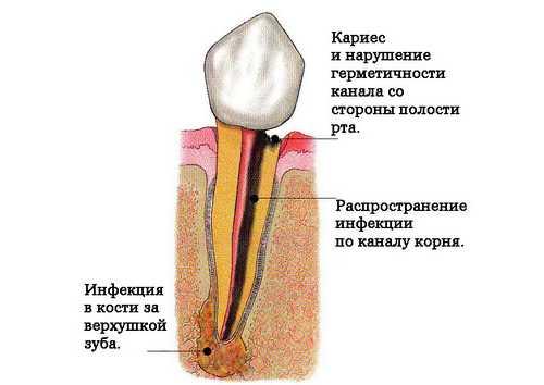 Поэтому бегом к стоматологу