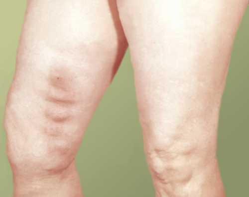 Болят ноги выше колен