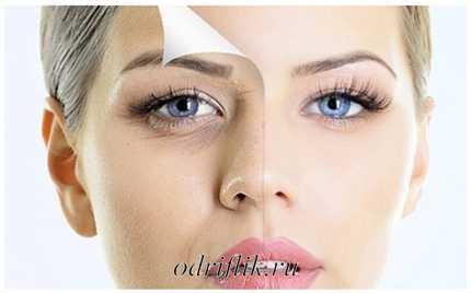 Обзор масок с эффектом ботокса: эффективность