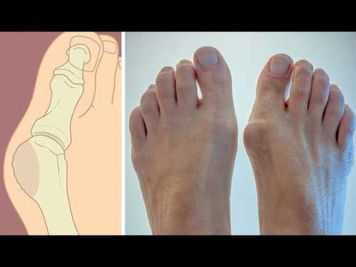 5 способов избавиться от косточки на ноге без помощи хирурга Конец страданиям